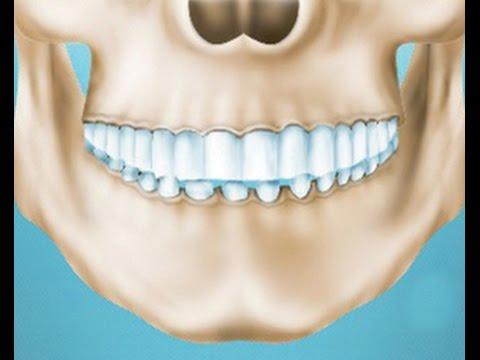 Почему зубы болят ночью: причины, как устранить боль
