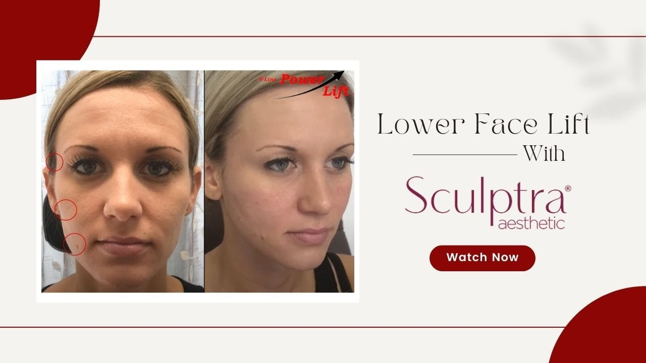 Lower face lift with Sculptra - YouTube