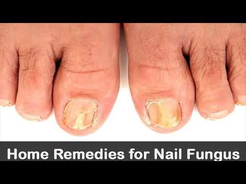 How To Use Tea Tree Oil To Treat Toe Nail Fungus- How To Use