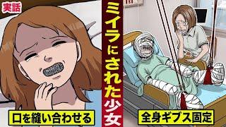 【実話】ミイラにされた少女。口を縫い合わせ...全身をギブスで固定する。