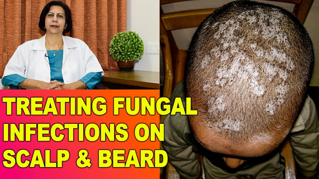 Fungal Fangal Infections Itching In Head Scalp Beard Treatment Dr Vijaylaxmi Singh Youtube