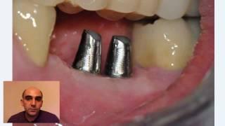 2. Секреты стоматологии с доктором Самвелом Блеяном