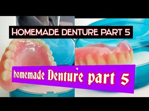 homemade-denture-part-5-(-make-your-own-dentures-kit)