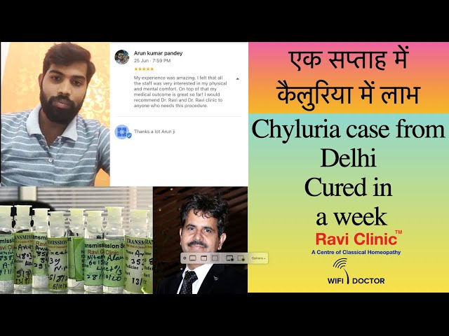 Chyluria Case From Delhi Treated During lockdown