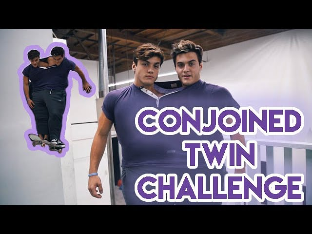 conjoined-twin-challenge