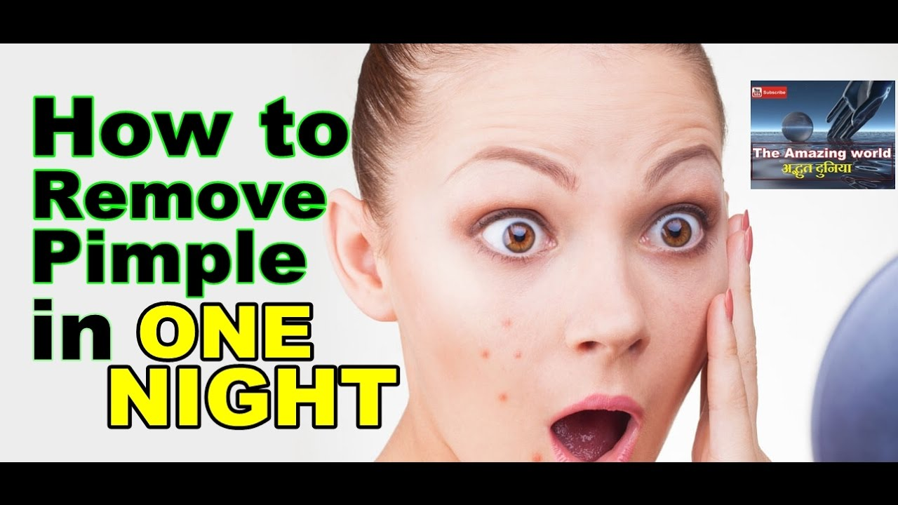Ready help how to get rid of pimples in one night