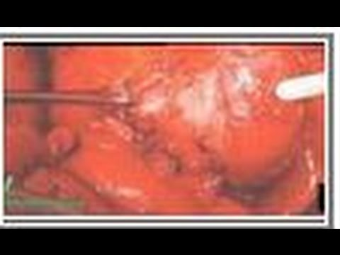 Food: Leading Cause Of Death! | Reverse Heart Disease, Stroke, Cancer THROUGH DIET