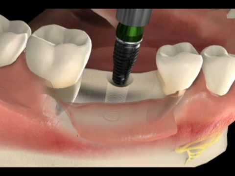 Como é a cirurgia de implante dentário - dente unitário - Clínica em São Paulo - SP