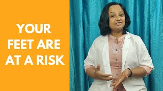How to treat varicose veins (spider veins) at home || Physiotherapy 2021