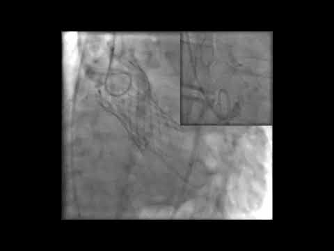 Aortic Stenosis Angiography
