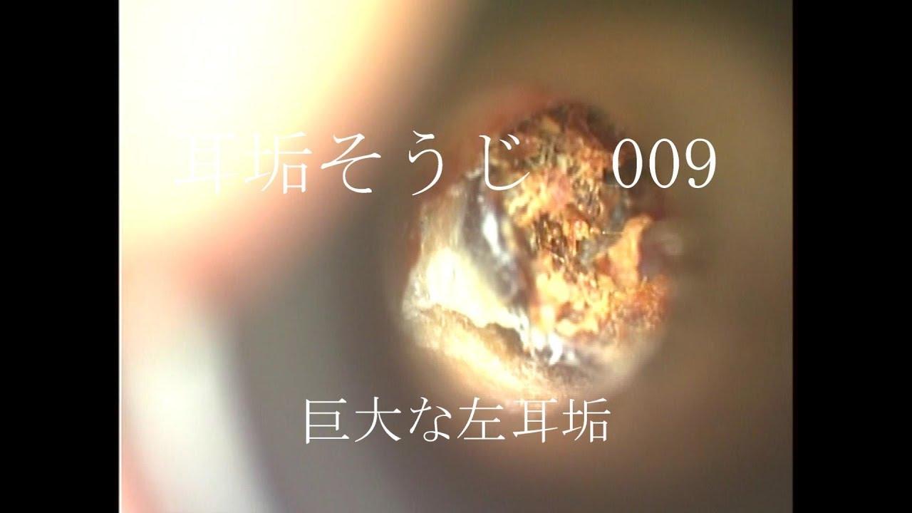 耳垢 栓塞 動画