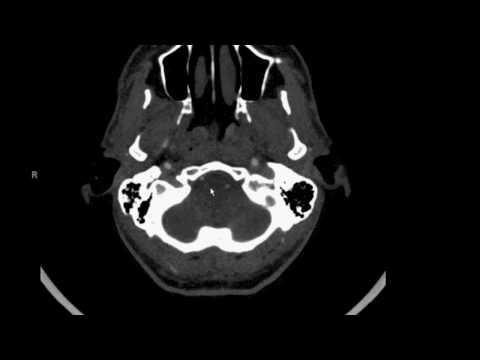 Cerebral Arteries thumbnail
