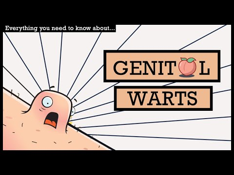 GENITAL WARTS, Causes, Signs and Symptoms, Diagnosis and Treatment.