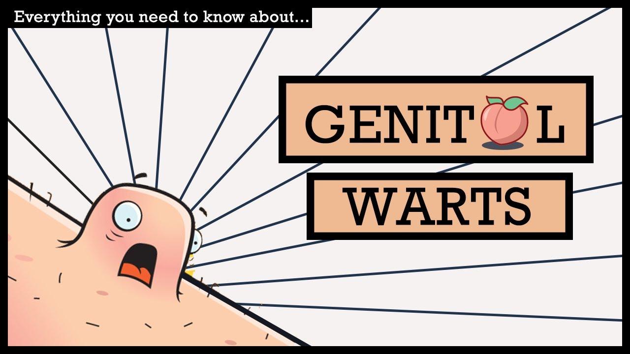 Warts in genital women 😍 Study: HPV