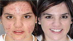 hqdefault - Acne Cure In 14 Day