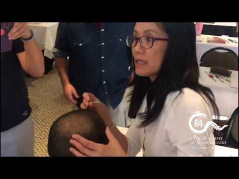 Scalp Acupuncture for Cervical pain - The Academy of Acupuncture-Balance Method