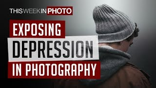 Exposing Depression in Photography -TWiP 522