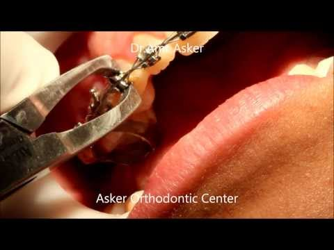 Bracket Removal-Taking Off Braces-Removing Orthodontic Brackets By Dr.Amr Asker