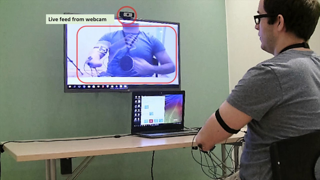 Augmented reality treatment reduces phantom pain in missing