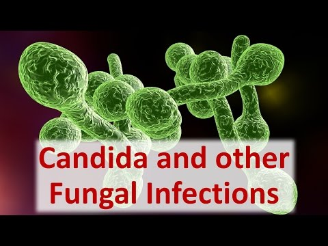Solutions for Candida and other Fungal Infections
