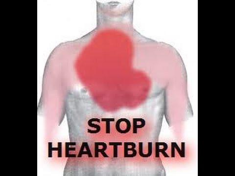 Severe Heartburn During Pregnancy