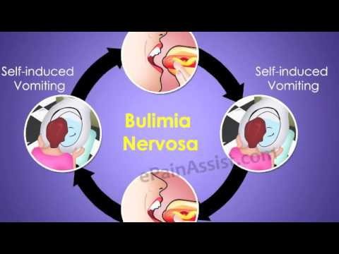 anorexia vs bulimia Amongst the eating disorders, two commonly get confused – anorexia nervosa,  binge-purge subtype (an-bp) and bulimia nervosa (bn.