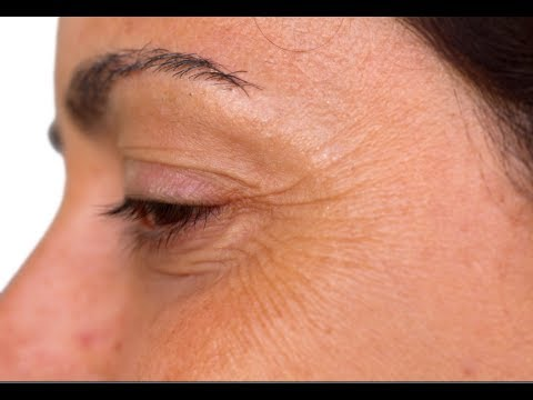 Share facial procedures to correct crows feet join