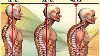 Kyphosis Spinecor Testimonial #177 Dr. Paul Oakley, Chiropractor at Scoliosisgta