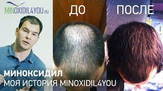 Миноксидил для волос. Моя история до и после применения миноксидила. Миноксидил от Minoxidil4you
