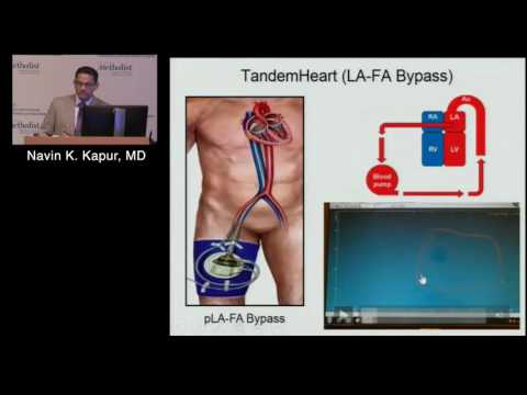 Advances in Acute Mechanical Circulatory Support...