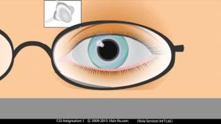 L'astigmatisme expliqué