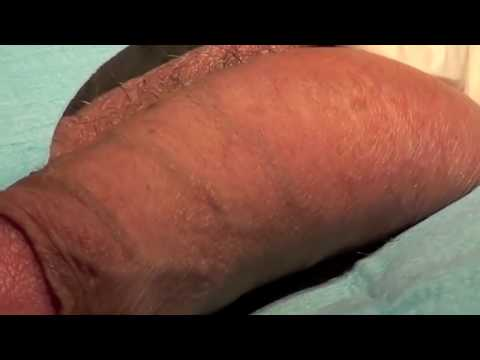 Penis spot removal UK, fordyce spot treatment UK, fordyce spot removal