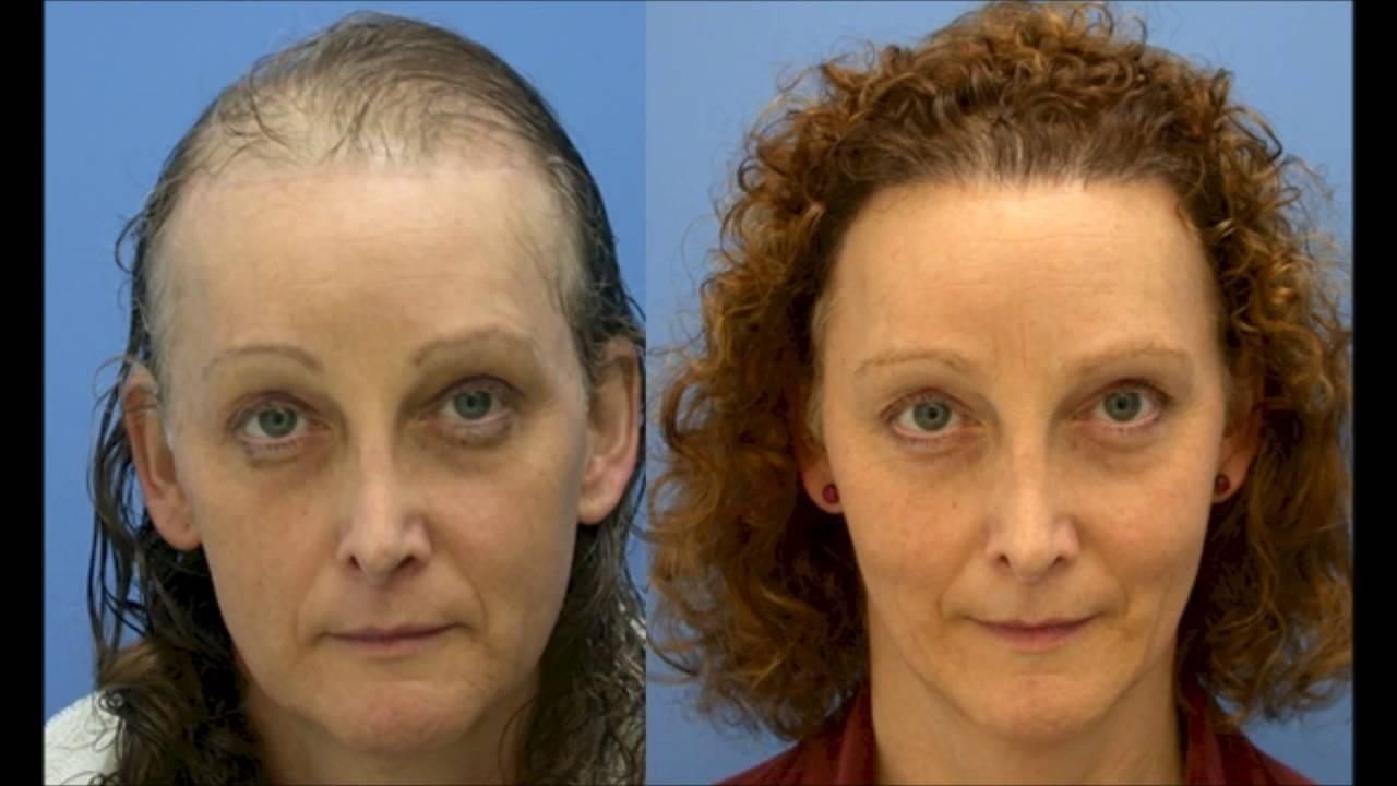 Saç Ekimi Nasıl Yapılır: Saç Ektirme Yöntemleri