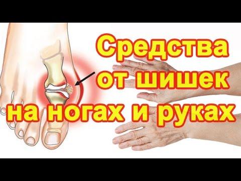 Почему появляются шишки на пальцах ног