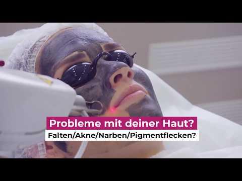 Hollywood Carbon Laser Peeling in Zürich bei VANITY the Art of Beauty