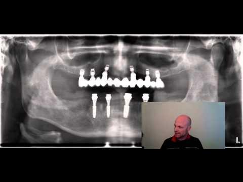 Knochenaufbau Oberkiefer Erfahrungen