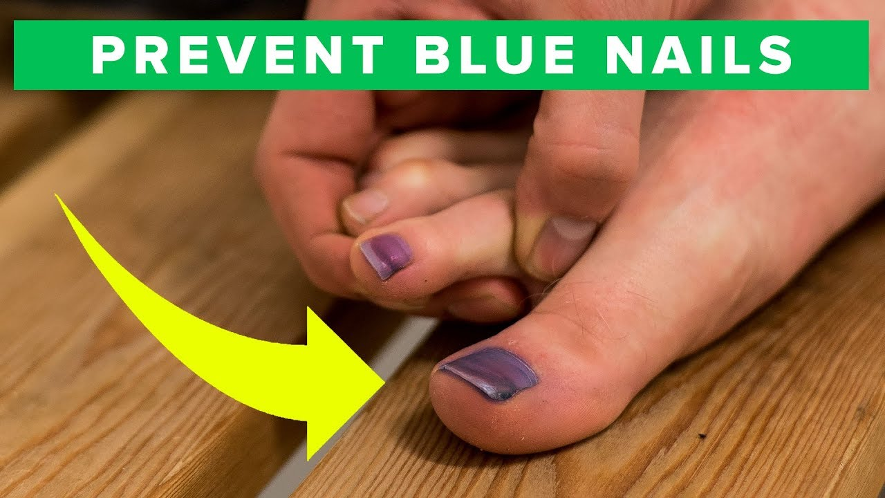 How to prevent blue toe nails - learn how to avoid black nails - YouTube