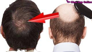 7 Cách Làm Tóc Mọc Nhanh Dài và Dày Trong 7 Ngày