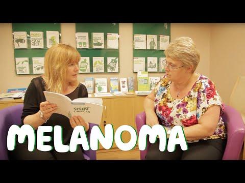 Treatment types and having treatment for Melanoma
