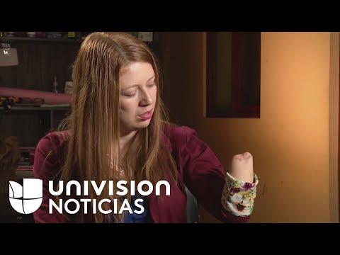Mujer mutilada en hospital Peruano exige hablar con Pedro Pablo Kuczynski