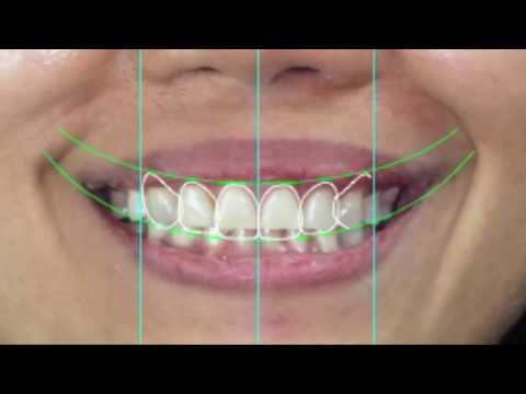 Smile Design by Charming Smile Dental studio