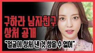 [쿠키영상] 구하라 남자친구 상처 공개