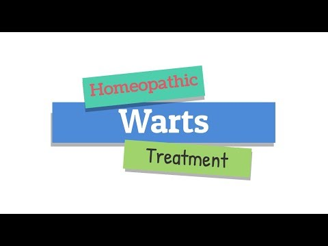 Homeopathic Medicine for Warts Removal | Homeopathy Warts Cure
