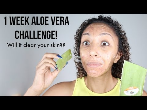 hqdefault - Aloe Vera Clears Up Acne