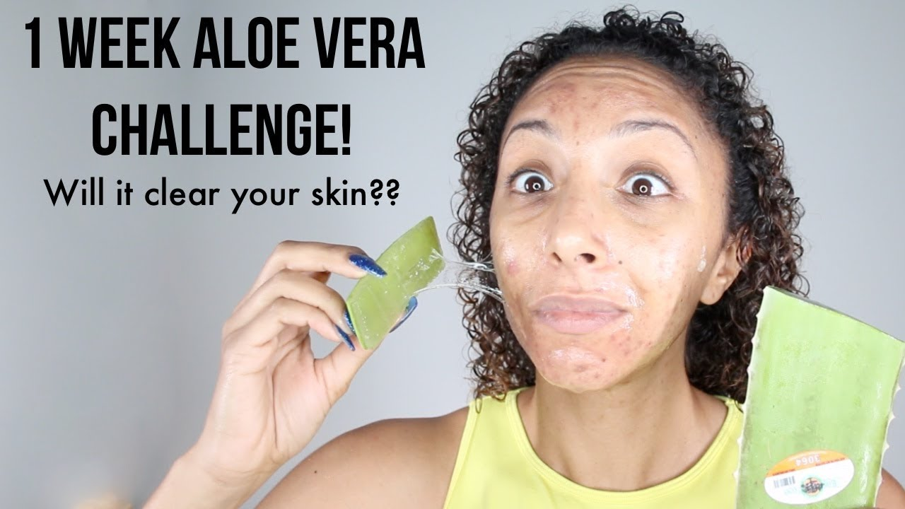 Aloe Vera Gel To Lighten Dark Spots 1 week aloe vera challenge! real results! will it clear acne and fade  scars?? | biancareneetoday