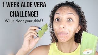 1 WEEK ALOE VERA CHALLENGE! REAL RESULTS! Will it clear acne and fade scars?? | BiancaReneeToday
