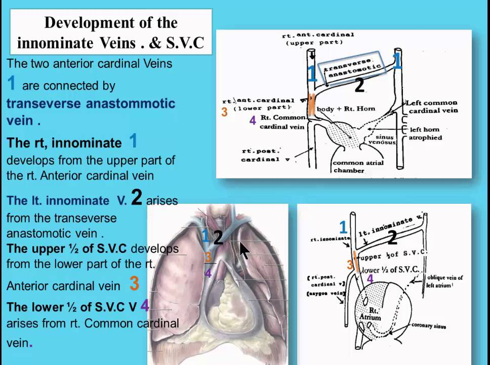 cvs  4 development of the innominate veins s v c