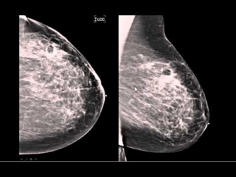tomosynthesis breast
