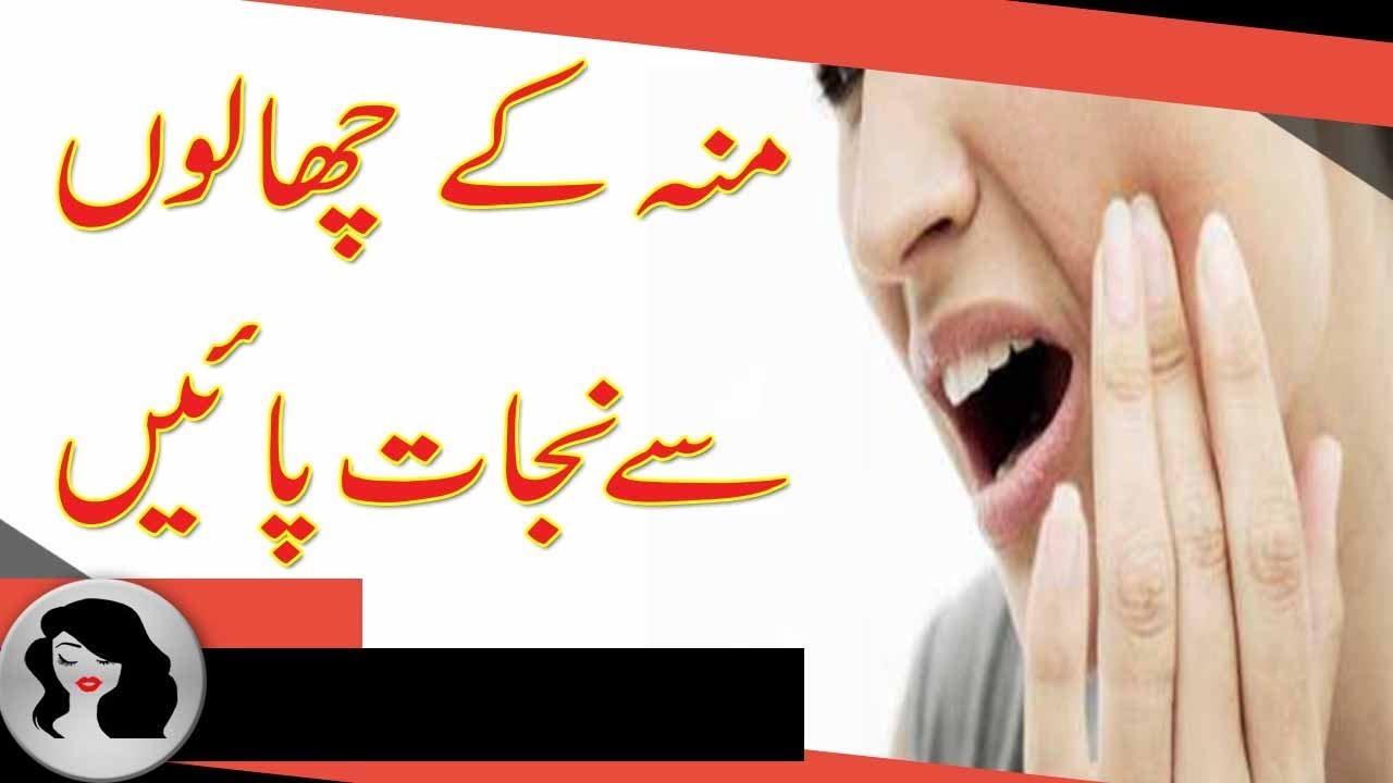 muh ke chale home remedies,منہ کے چھالے کا علاج ,pimples in your mouth,muh  ke chale,