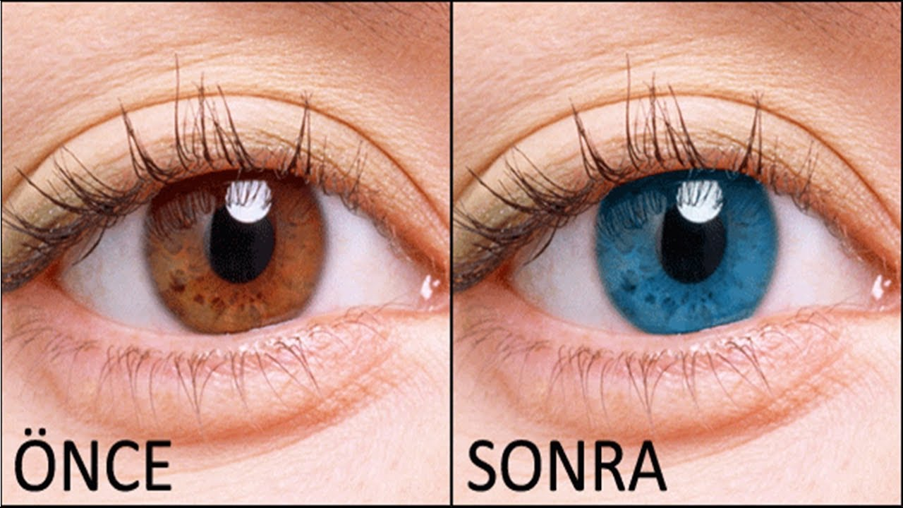 5 Dakikada Harika Gözler